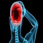rfs migraine
