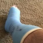 rfs ankle
